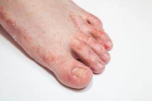 voet jeukt erg kleine bultjes